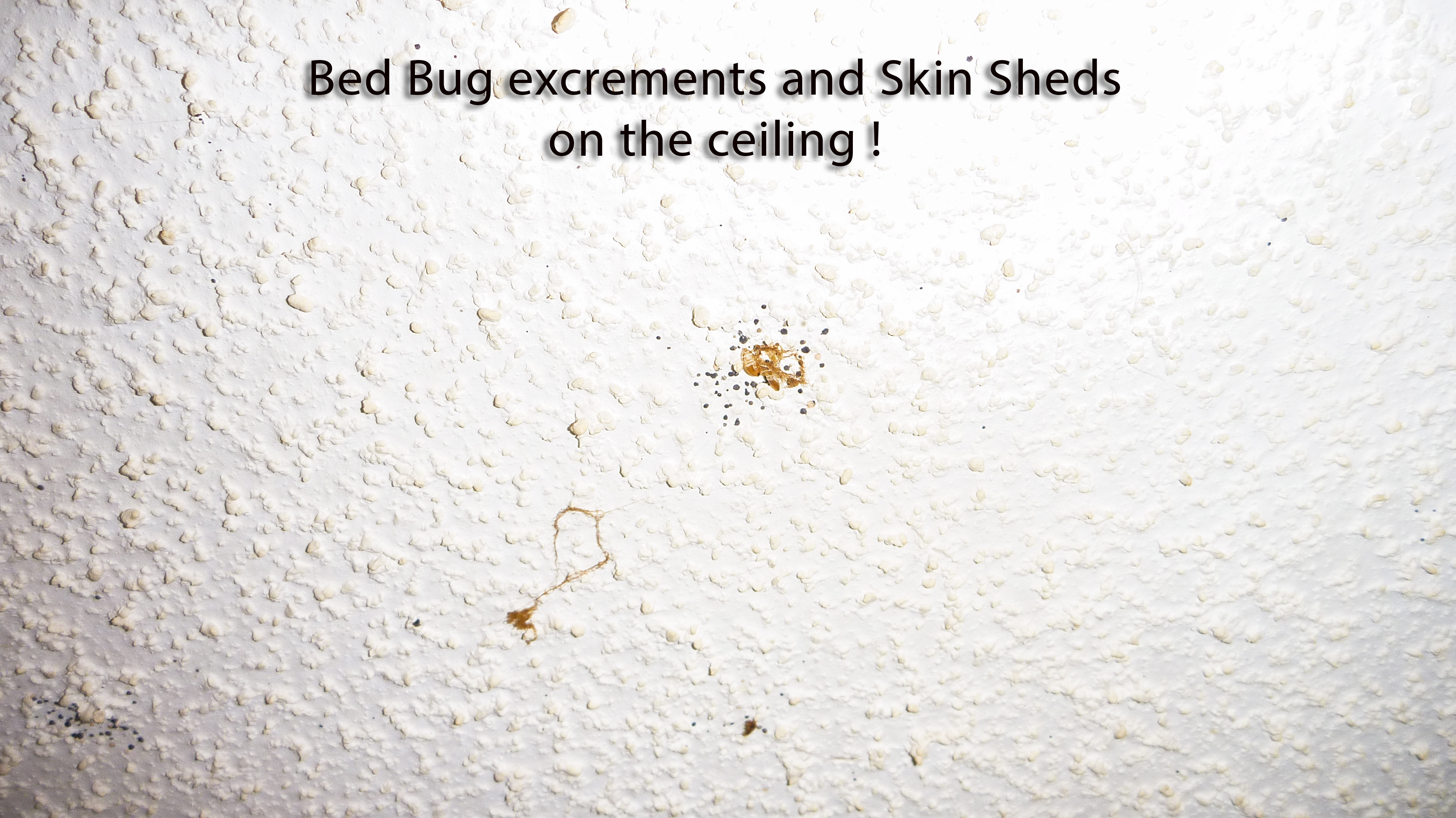 Bed Bugs Skin Sheds And Excrements On The Ceiling: