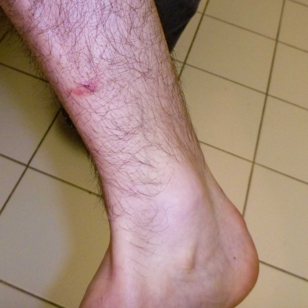 Bed Bug Bite on a Male Ankle in Toronto