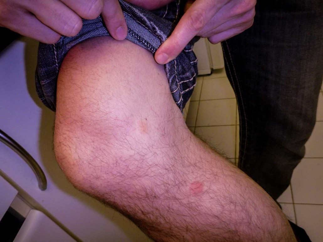 Bed Bug Bite on a Male Knee in Toronto